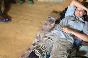 Glumica prohodala posle pet meseci: Noga mi više nije ista