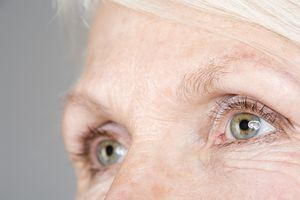 6 szembetegség, ami 40 év fölött egyre gyakoribb: a rövidlátástól a makula degenerációig