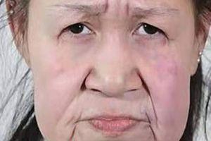 Od 60 do 15: Transformacija Kineskinje u koju je stala sva moć plastične hirurgije
