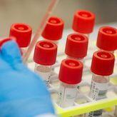 Κορωνοϊός: Ελπιδοφόρο φάρμακο με ελληνική σφραγίδα – Πότε θα εγκριθεί