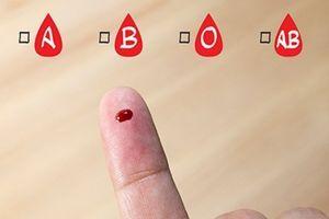"""Ovo je """"zlatna"""" krvna grupa: Na svetu je ima svega 43-oje ljudi, a evo zašto je izuzetna"""