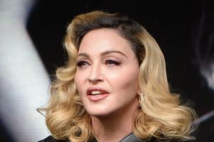 Madonna še ni končala z lepotnimi operacijami. Pop diva je s svojim novim videzom šokirala javnost